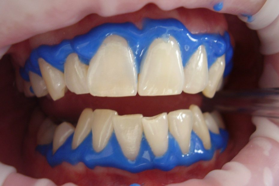 kako pobeliti zobe